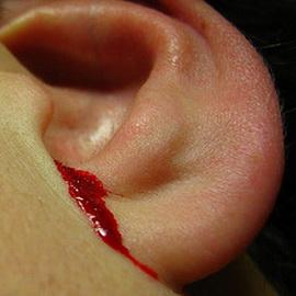 При незначительных повреждениях стенок наружного слухового прохода лечебные мероприятия направлены на остановку кровотечения и предупреждение воспаления в наружном ухе.