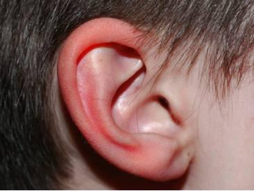 Ощущение того что пекут уши. Почему горит левое или правое ухо