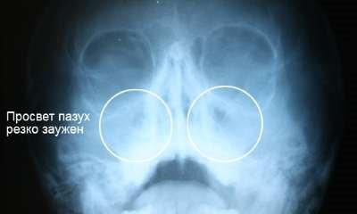 О чем может говорить тотальное затемнение гайморовых пазух на рентгенограмме
